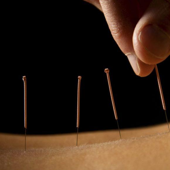 Stress mit Akupunktur behandeln