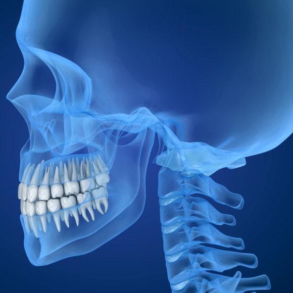 Wenn es im Kiefer knackt und knirscht – am 6.März ist Welttag des Zahnarztes!