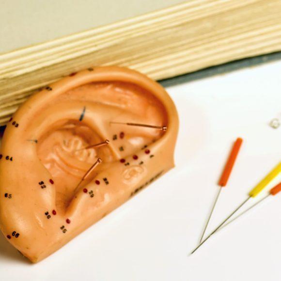 … damit ich sie besser zur Ohrakupunktur nutzen kann!